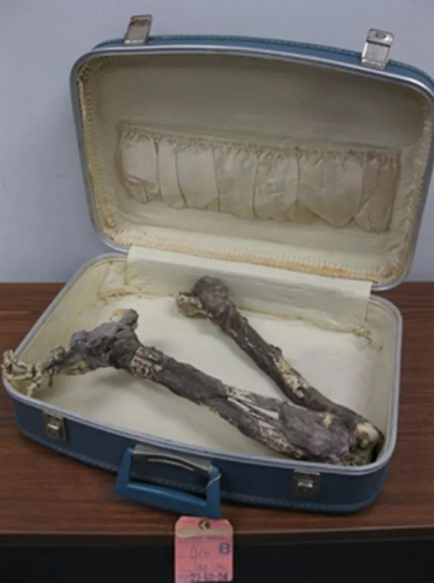 fake mummified leg found at Goodwill